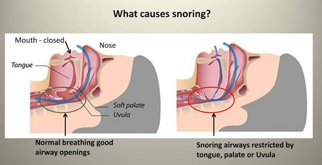 snoring causes and cure by hydrogen inhalation