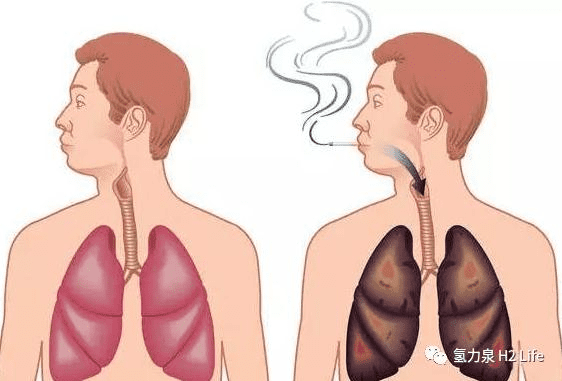smoking damages lungs